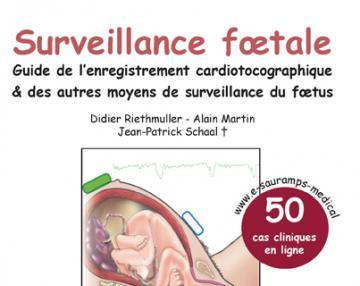 Surveillance fœtale - Guide de l'enregistrement cardiotocographique & des autres moyens de surveillance du fœtus