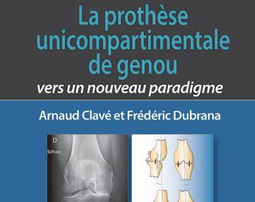 La prothèse unicompartimentale du genou - Vers un nouveau paradigme