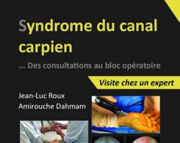 Syndrome du canal carpien ... Des consultations au bloc opératoire