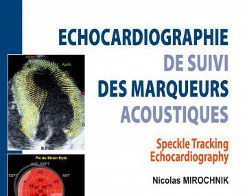 Echocardiographie de suivi des marqueurs acoustiques